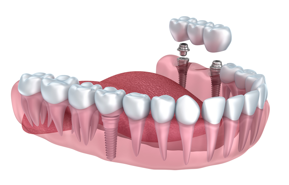 Dental Bridge - Missing Teeth Treatments