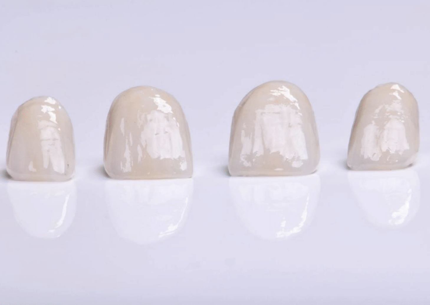 Types of Dental Crown