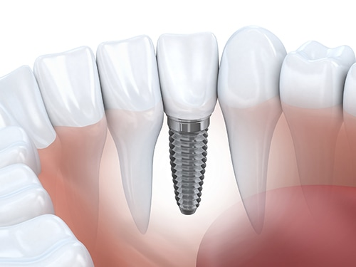 dental implants solutions